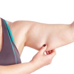 đối tượng hút giảm mỡ bắp tay