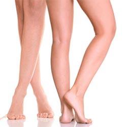 Hút giảm mỡ bắp chân