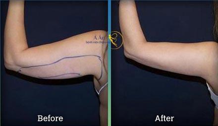 Kết quả điều trị giảm mở bắp tay