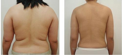 Kết quả điều trị giảm mỡ lưng tại Bệnh viện thẩm mỹ Á Âu