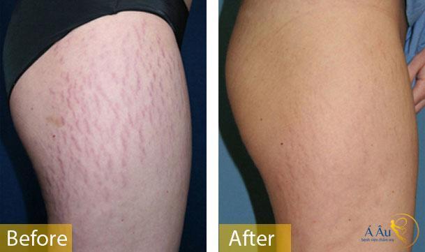 Ảnh trước sau điều trị rạn da bằng laser