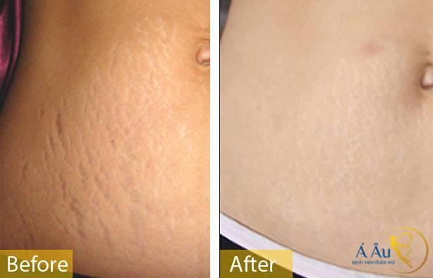 Kết quả điều trị rạn da bằng laser