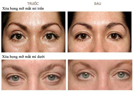 kết quả điều trị xóa bọng mỡ mắt