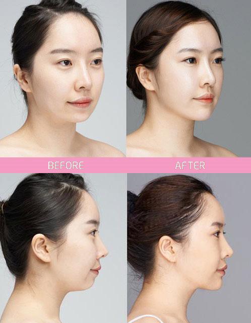 Hình ảnh minh họa trước và sau khi thực hiện phẫu thuật độn cằm V-line (*)