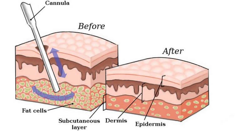 quy trình hút giảm mở bụng