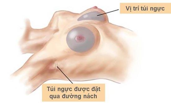 phương pháp nâng ngực