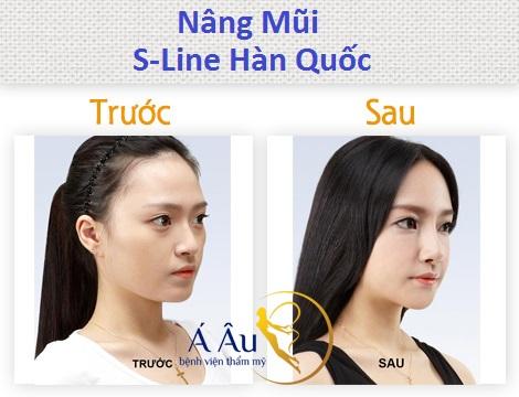 nang-mui-bang-sun-tu-than3