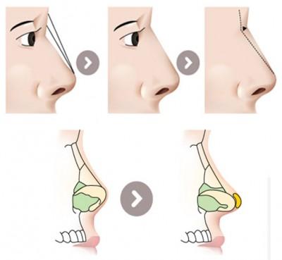 Kỹ thuật nâng mũi bọc sụn tại Á ÂU.