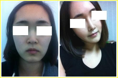 Hình ảnh trước và sau nâng mũi của khách hàng Tại Bệnh viện thẩm mỹ Á ÂU