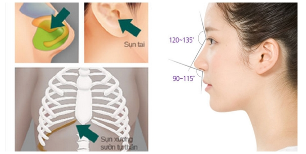 Chất liệu nâng mũi trong nâng mũi chức năng. Chất liệu nâng mũi trong nâng mũi chức năng.