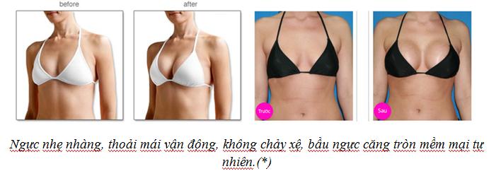 Ưu điểm nâng ngực bằng túi B-Lite