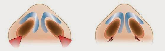 Mô phỏng kỹ thuật chỉnh hình cắt cánh mũi     Mô phỏng kỹ thuật chỉnh hình cắt cánh mũi