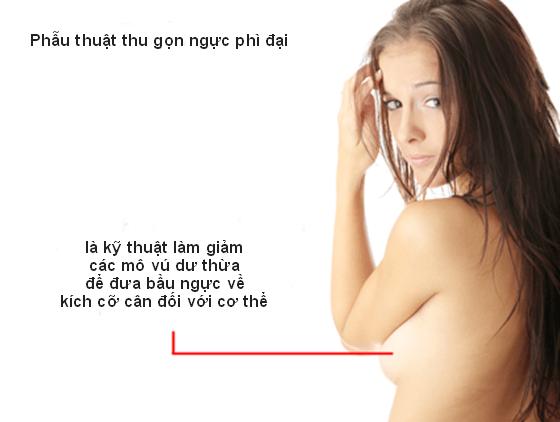 giam-kich-thuoc-nguc