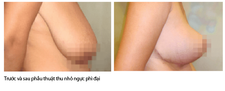 hinh-anh-truoc-sau-thu-gon-vu-phi-dai