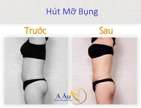 Hút mỡ bụng trước và sau