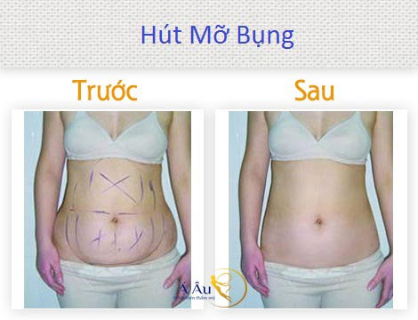 kết quả điều trị hút mỡ bụng