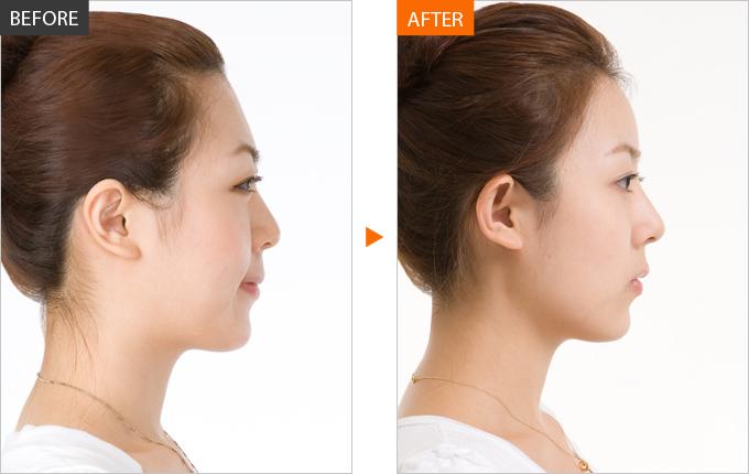 Kết quả thu gọn cánh mũi không ảnh hưởng đến bệnh viêm xoang mãn tĩnh.