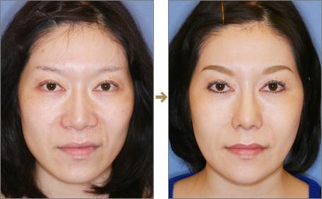 Kết quả từ phương pháp thu nhỏ đầu mũi Kết quả từ phương pháp thu nhỏ đầu mũi tại Bệnh viện thẩm mỹ Á Âu.
