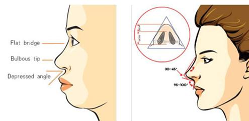 Đối tượng nâng mũi