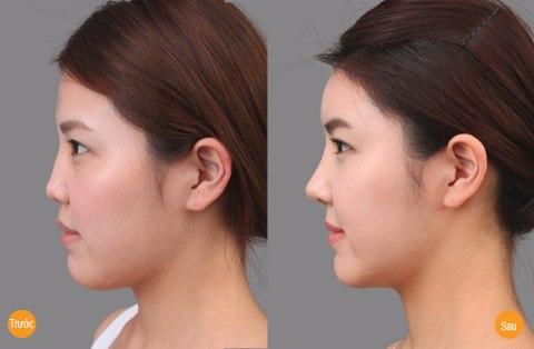 Hình ảnh trước sau nâng mũi không phẫu thuật tại Bệnh viện thẩm mỹ Á ÂU.