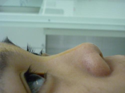 Mũi thấp và hếch khiến nhiều người thiếu tự tin với vẻ bề ngoài của mình