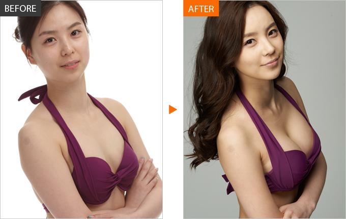 Kết quả nâng ngực tại Bệnh viện thẩm mỹ Á ÂU.