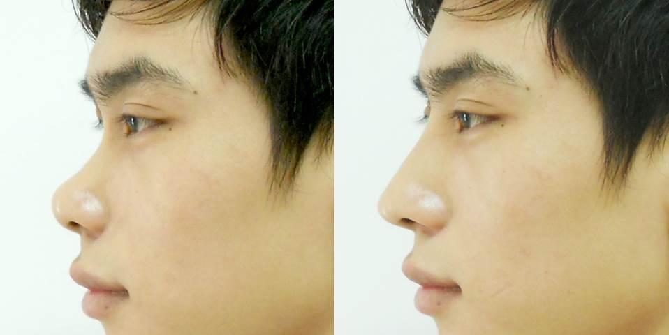 Kết quả thu nhỏ nâng mũi nam giới tại Á Âu.