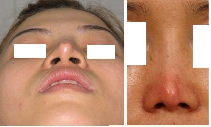 Tình trạng mũi bị lộ sóng, chân mũi.
