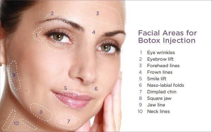 xoa-nhan-botox-3