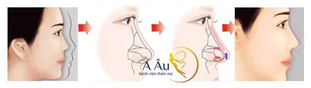 Công nghệ nâng mũi s line tạo dáng mũi s line hoàn hảo.