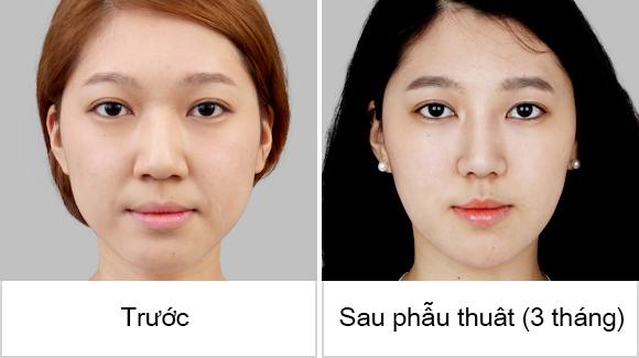 Khắc phục tất cả trường hợp mũi xấu trở nên đẹp hơn tại Á Âu. Khắc phục tất cả trường hợp mũi quá xấu trở nên đẹp hơn tại Á Âu.
