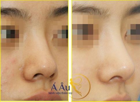 Kết quả của phương pháp sửa mũi bằng sụn tự thân Kết quả của phương pháp sửa mũi bằng sụn tự thân