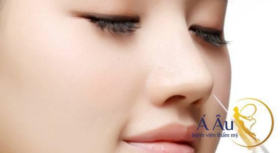 Kỹ thuật nâng mũi không phẫu thuật bằng filler tại Á Âu.