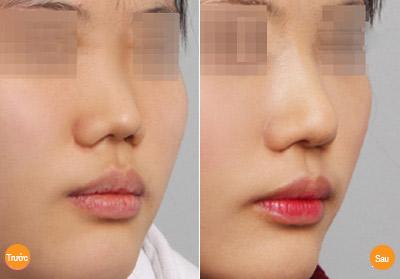 Hình ảnh nâng mũi không phẫu thuật tại Á Âu.