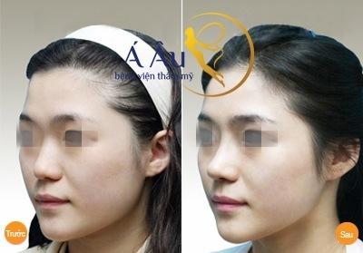 Kết quả nâng mũi trước và sau tại Bệnh viện Á Âu.