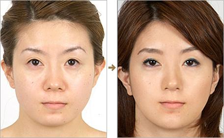 Hình ảnh trước và sau khi thu nhỏ đầu mũi tại Á Âu.