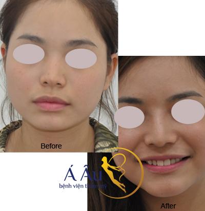 Kết quả nâng mũi s line tại Bệnh viện thẩm mỹ Á Âu. Kết quả nâng mũi s line tại Bệnh viện thẩm mỹ Á Âu.