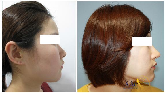 Sở hữu cánh mũi đẹp bằng phương pháp nâng mũi s line.