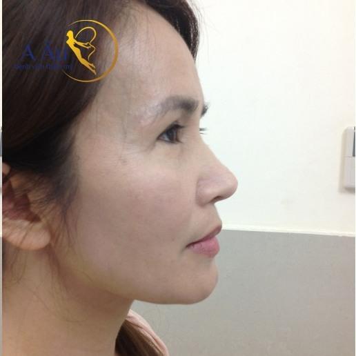 Hình ảnh khách hàng sau khi nâng mũi tại Bệnh viện thẩm mỹ Á Âu.