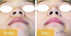 Kết quả phẫu thuật nâng cao mũi tại Bệnh viện thẩm mỹ Á Âu.