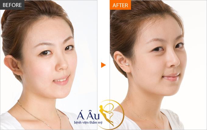 ình ảnh trước và sau khi nâng mũi tại Bệnh viện thẩm mỹ Á Âu.