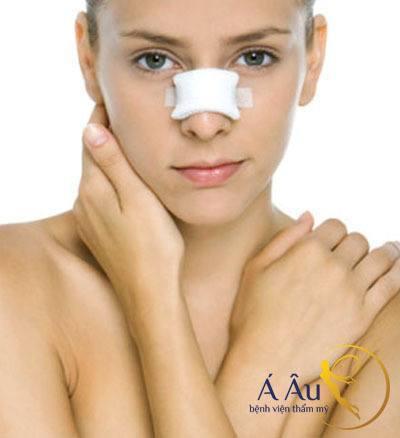 Sửa mũi mấy ngày hết sưng được nhiều người quan tâm.
