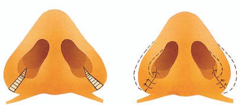Thu gọn đầu mũi nội soi không hề ảnh hưởng tới sinh hoạt của bạn