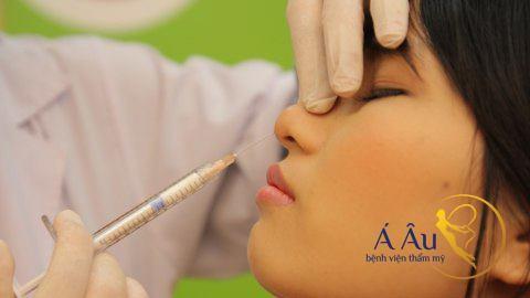 Công nghệ nâng mũi an toàn nhờ không phẫu thuật.