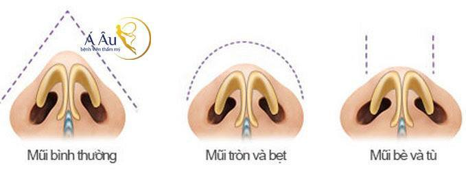 Kỹ thuật thu gọn cánh mũi giải pháp làm mũi thon gọn.