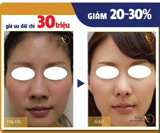 Kết quả nâng mũi S-line của khách hàng tại Bệnh viện thẩm mỹ Á Âu