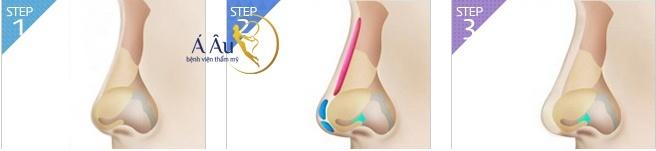 Nâng mũi bằng dụng cụ giải pháp liệu có tối ưu bằng phẫu thuật ?