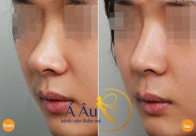 Hình ảnh nâng mũi tại Bệnh viện thẩm mỹ Á Âu.