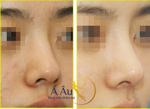 Kết quả trước và sau nâng mũi kết hợp thu gọn cánh mũi.