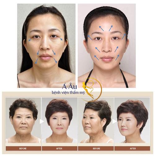 Căng da bằng chỉ collagen